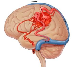 Лечение артериовенозной мальформации  головного мозга в Израиле